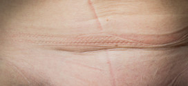 El mapa de mi cuerpo, por Charo Corrales